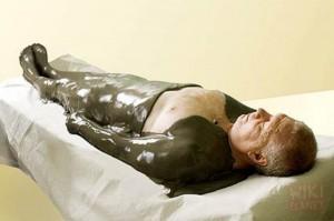 Лечение простатита грязями