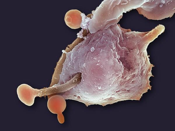 Паразитный грибок в организме