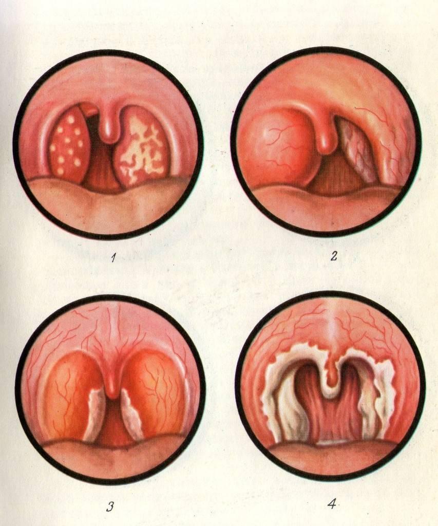 Сравнение дифтерии и ангины