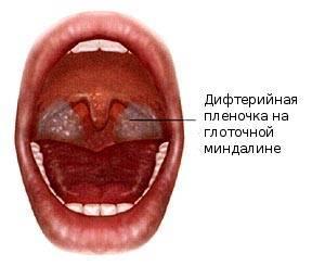 Симптомы и диагностика дифтерии