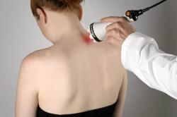 Лазер при лечении остеохондроза