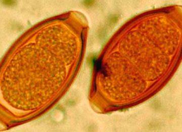 Яйца гельминтов – как выявить и как бороться