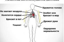 Вегетососудистая дистония как показание к проведению аутогемотерапии