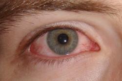 Покраснение оболочки глаз - симптом аллергии