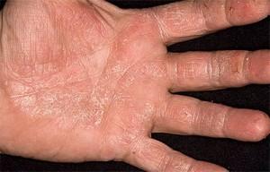 Проявление симптомов псориаза на ладонях