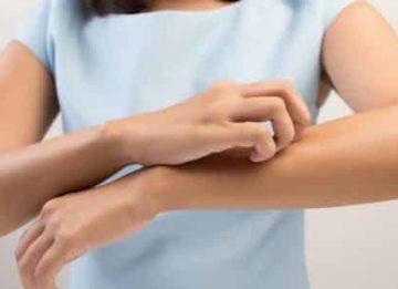 Причины возникновения зуда при герпесе и лечение