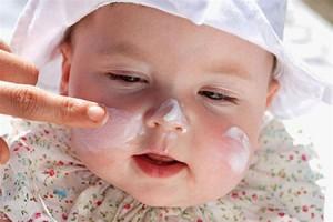 аллергический дерматит лечение мазь