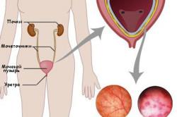 Повышение лейкоцитов на фоне цистита