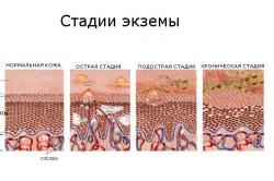 Экзема как показание к проведению аутогемотерапии