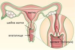 Эрозия шейки матки