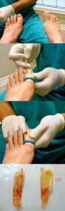 Этапы хирургического удаления ногтей