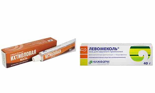 Ихтиоловая мазь и Левомеколь входят в число препаратов группы антисептиков