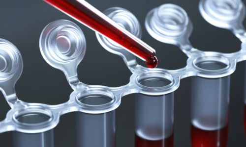 Анализ крови на лямблиоз