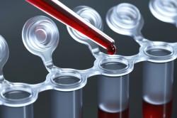 Диагностика заболевания по анализу крови