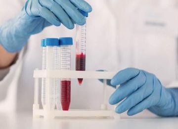 Что такое жидкая часть крови?