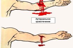 Типы кровотечения