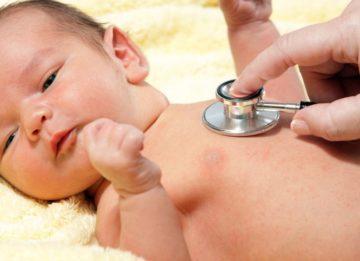 Классификация, симптомы и лечение желтухи новорожденных