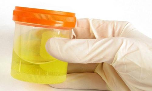 Проблема выявления лейкоцитов в моче