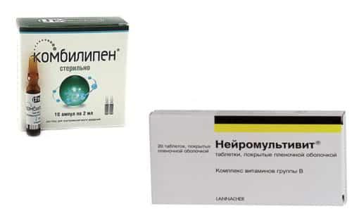 Нейромультивит или Комбилипен являются частью лечения многих неврологических заболеваний, потому что эффективно снимают болевые ощущения
