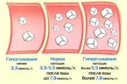Норма количества сахара в крови и отклонения