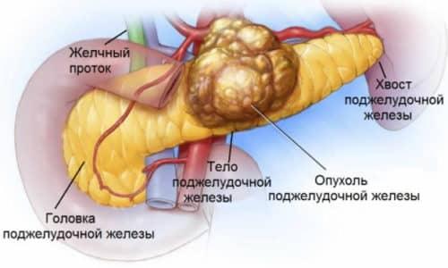 Злокачественные опухоли опасны, они не только долгое время не проявляются, но и лечение их мало помогает пациенту