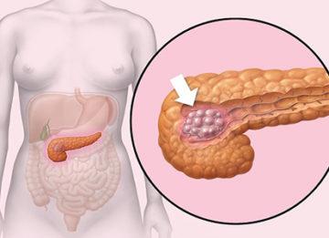 Виды опухоли поджелудочной железы