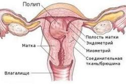Полипы шейки матки как причина обильных кровотечений