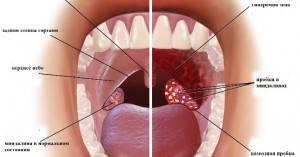 Сравнение здоровой и больной миндалины
