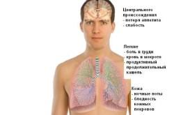 Туберкулез - причина повышения лимфоцитов в крови