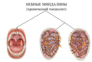 Возникновение хронического тонзиллита