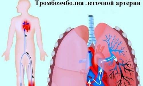 К самым распространенным осложнениям тромбофлебита относят тромбоэмболию