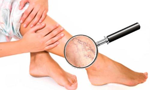 Тромбофлебит глубоких вен нижних конечностей – это воспалительная патология стенок вен, которые находятся под мышцами