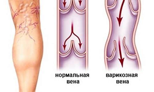 Можно также классифицировать патологию по форме деформаций вен. У пациента может развиться ограниченный подкожный варикоз